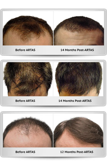 ARTAS Robotic Hair Restoration. Before and after pictures 12 months - 14 months difference.