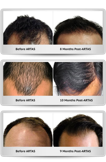 ARTAS Robotic Hair transplant. Before and after hair transplantation images.